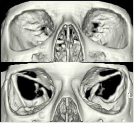 Eurorad radiologic teaching files for Paredes orbitarias