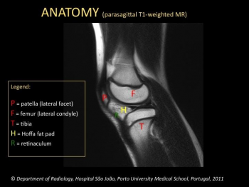 Eurorad radiologic teaching files knee anatomy parasagittal t1 weighted mri ccuart Choice Image