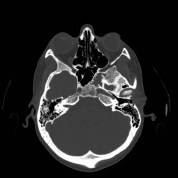 eurorad - radiologic teaching files, Human Body