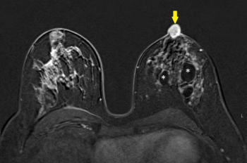 Bilateral breast mri gadolinium