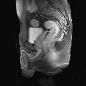 EURORAD - Radiologic Teaching Files