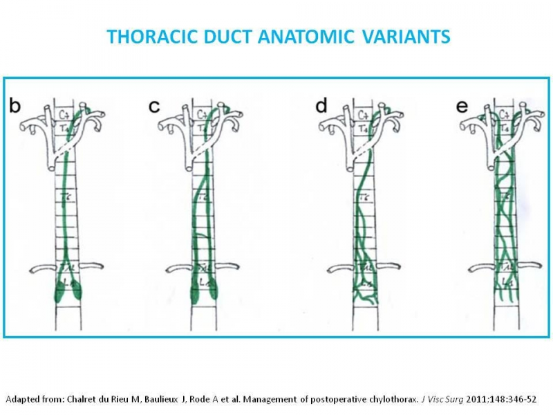 Close Figure 6 Thoracic Duct Anatomic Variants Image Origin Maciel