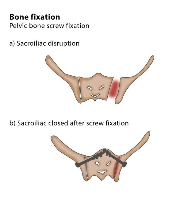 Bone fixation