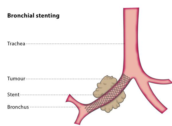 Bronchial stenting