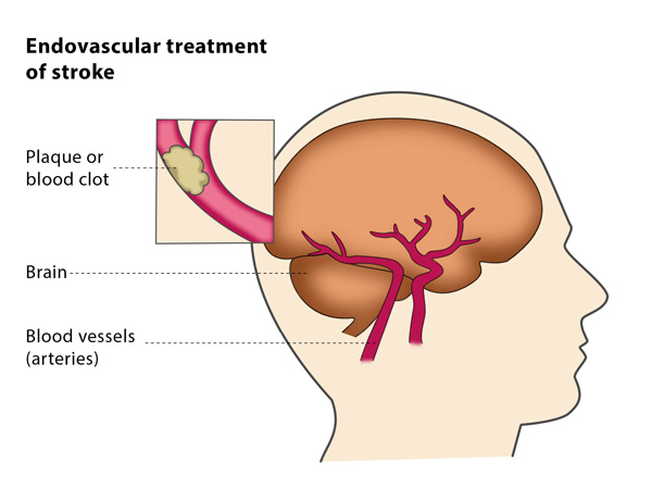 Endovascular treatment of stroke