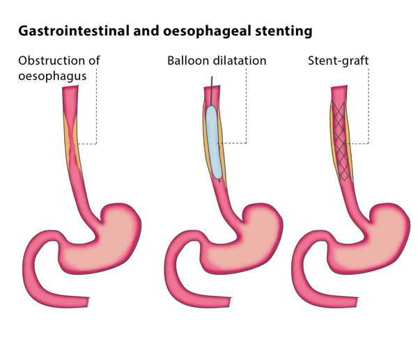 Gastrointestinal and oesophageal stenting