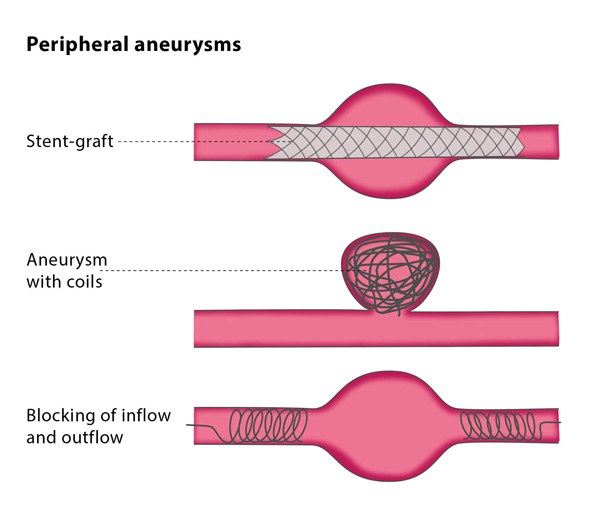 Endovascular treatments of peripheral aneurysms