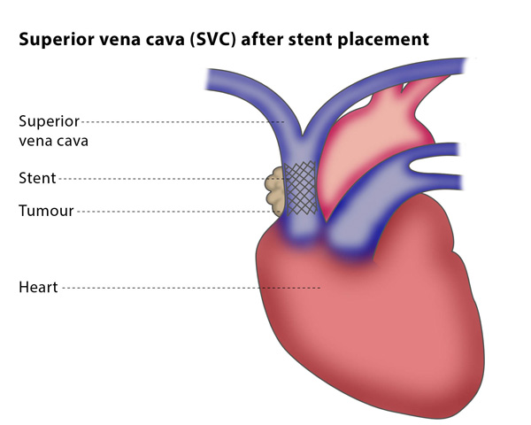 SVC after stent placement