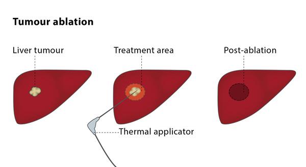 Tumour ablation