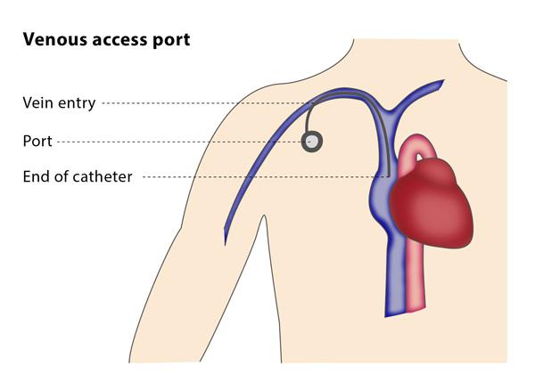 Venous access port