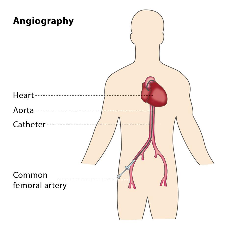 arteriogram साठी प्रतिमा परिणाम