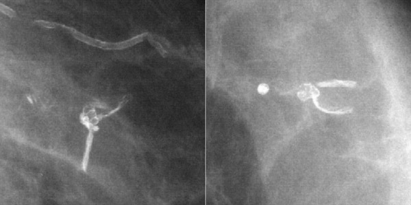 Images of segmental breast calcifications was and