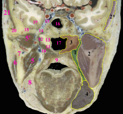 Close Figure 2: Anatomy of the suprahyoid deep spaces in the coronal ...