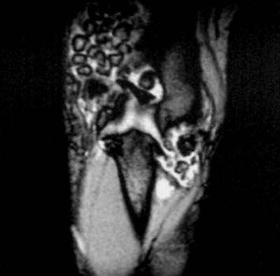Analgezice pentru osteochondroza coloanei vertebrale toracice